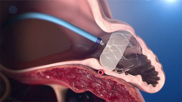 See a detailed animated depiction of the WATCHMAN Implant procedure