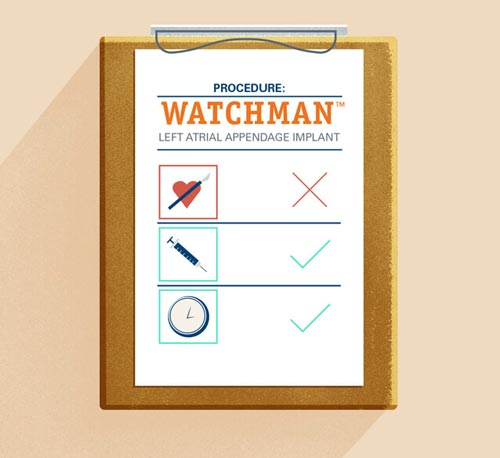 WATCHMAN procedure checklist illustration