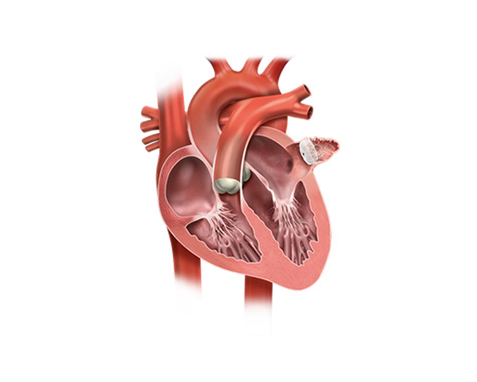Illustration of heart with WATCHMAN Device